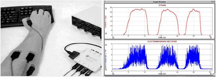 근전도 측정 EMG